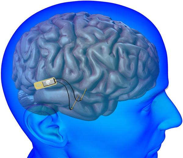 Имплантат мозга