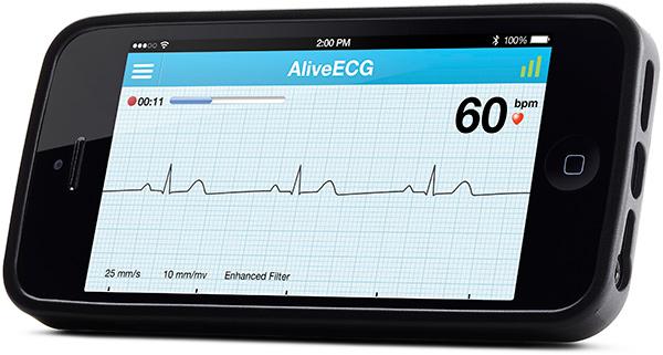 Популярный мобильный измеритель ЭКГ AliveCor Heart Monitor получил новую функциональность
