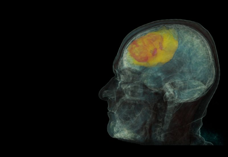 Проект Microsoft поможет обнаружить рак за 30 секунд