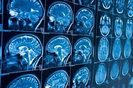 Новые вирусы подменяют результаты исследования смертельно больных людей