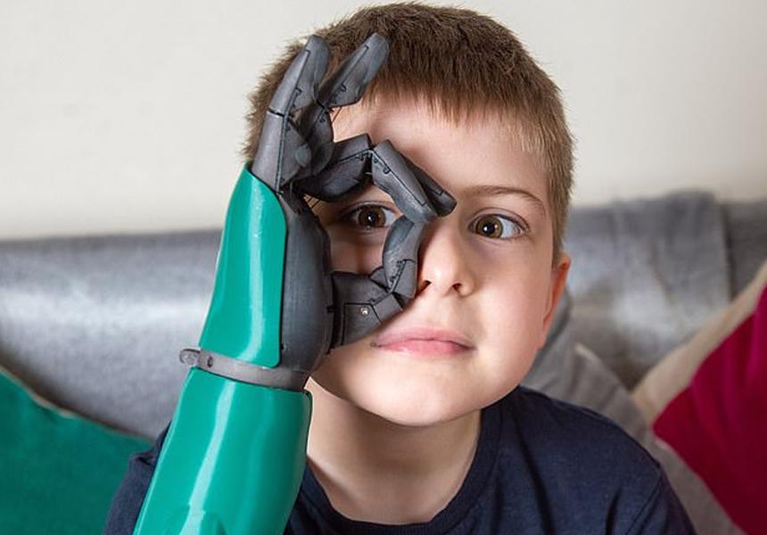 Бионическую руку впервые в истории установили восьмилетнему ребёнку