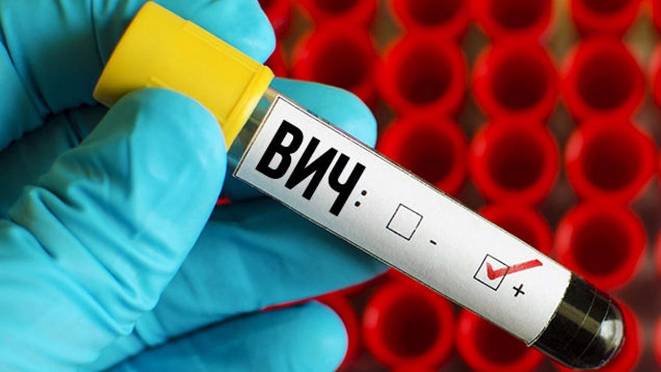 Ученые выделили новую разновидность ВИЧ