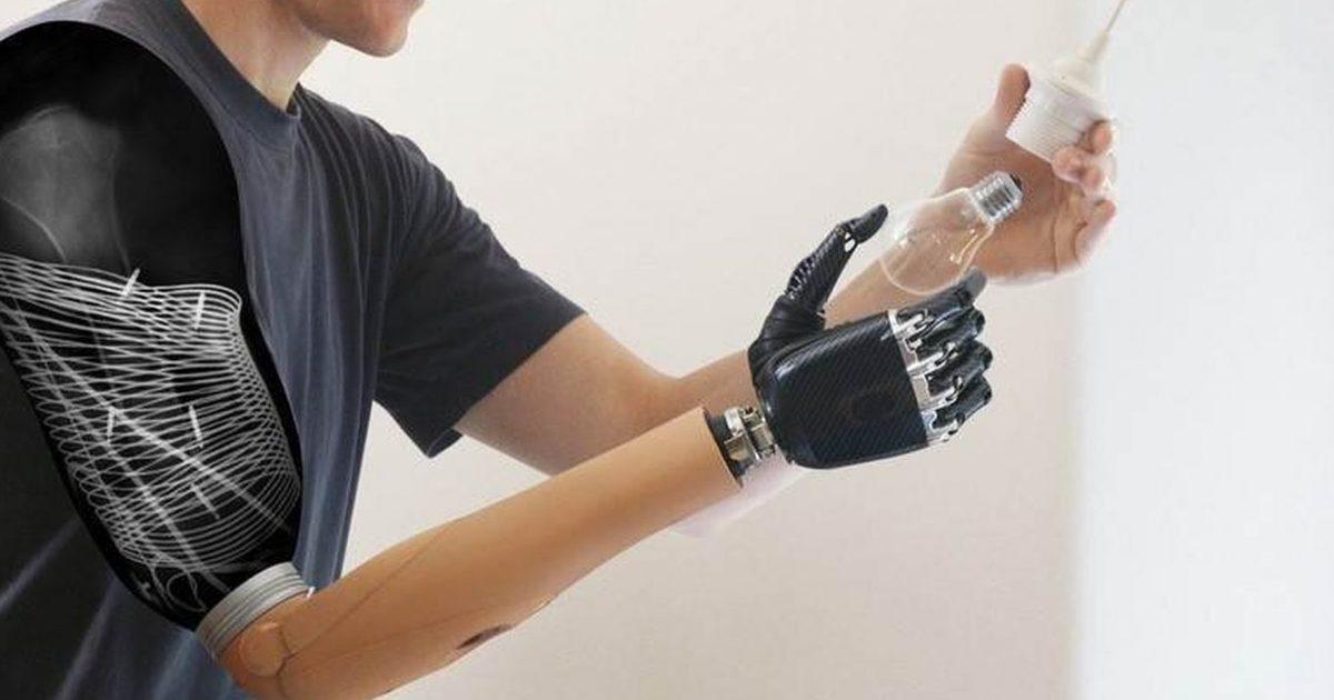 Хирурги впервые пересадили человеку руку от живого донора
