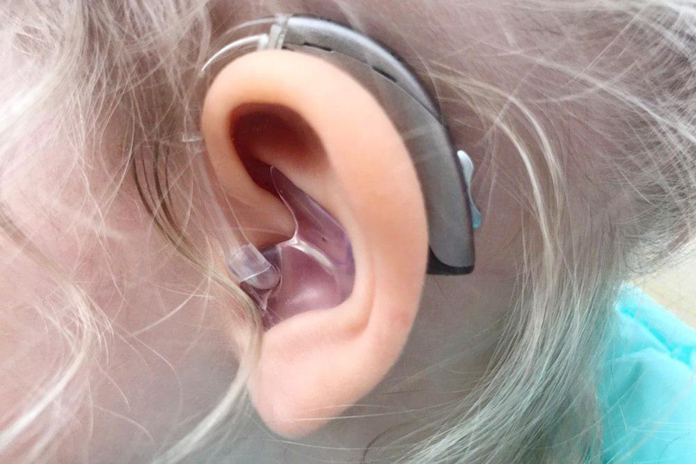 Создан слуховой аппарат дешевле 100 рублей