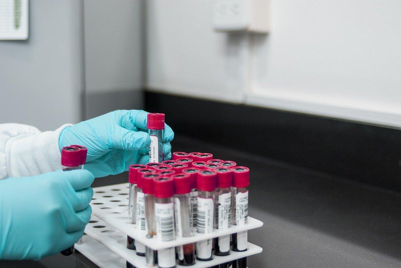 В России создали устройство для облегчения забора крови