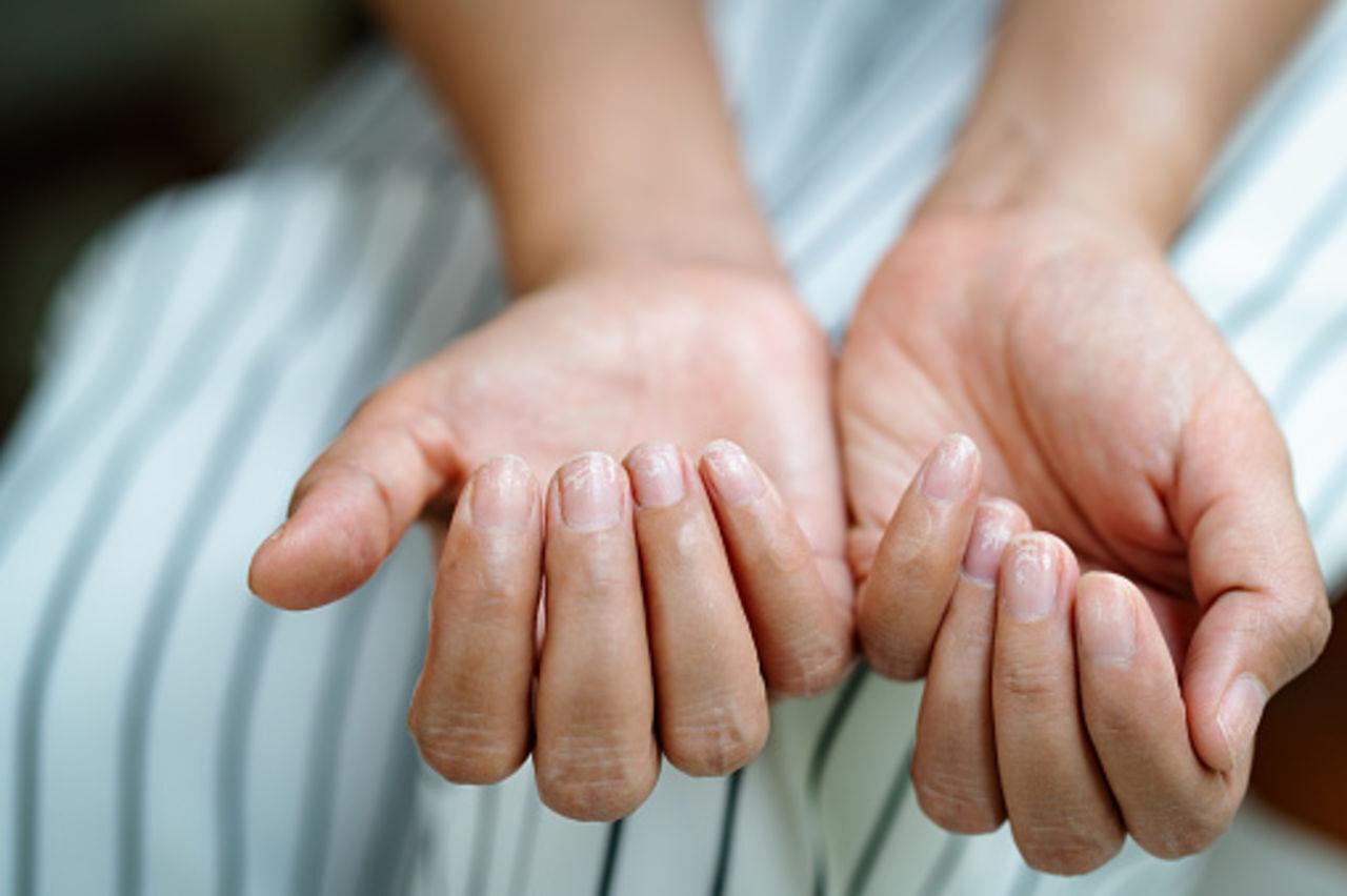 Врач рассказала, какие болезни можно заподозрить по ногтям