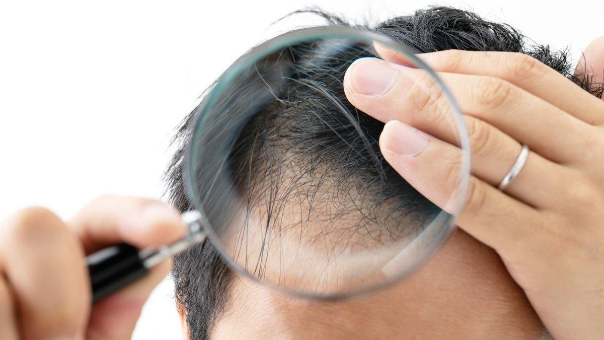 Ученые выяснили, почему во время стресса человек теряет волосы