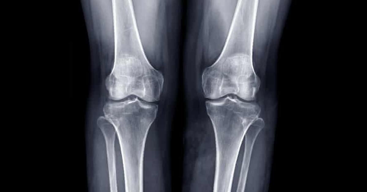 Для восстановления костей в России могут начать использовать генные и генно-клеточные конструкции