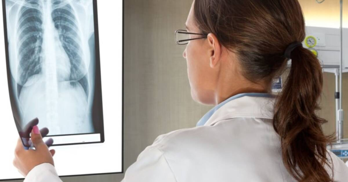 Компьютер научился определять расу человека по его рентгеновскому снимку