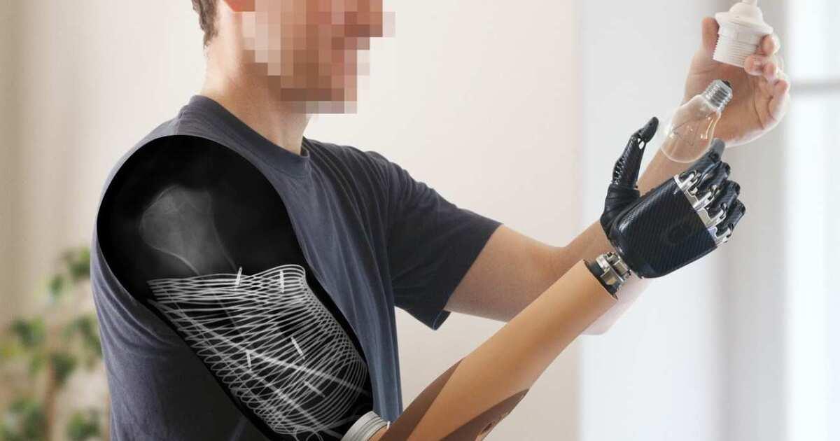 Создан протез руки, позволяющий ощущать прикосновения