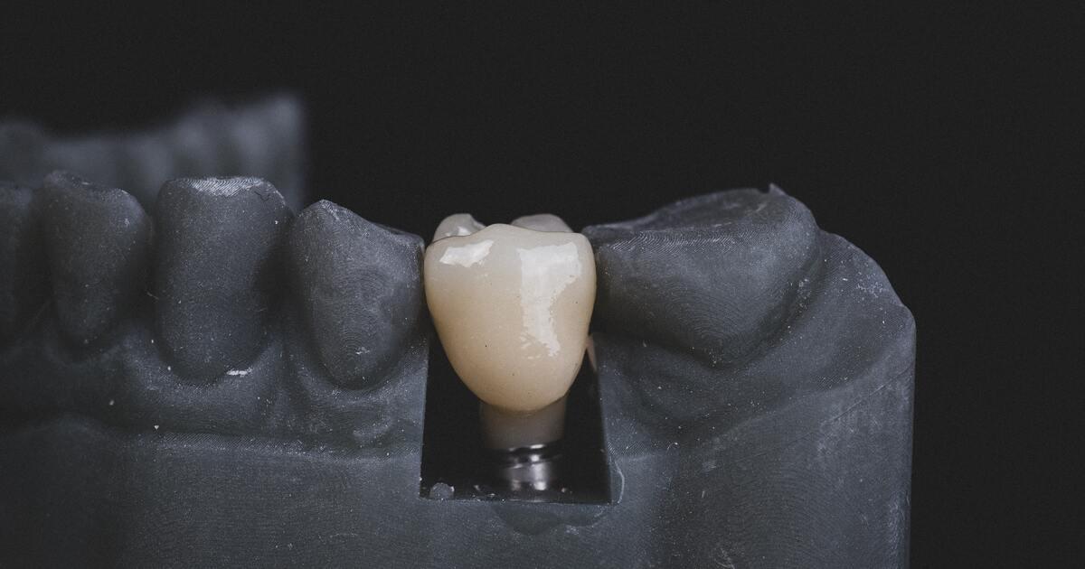 Созданы вырабатывающие электричество зубные импланты