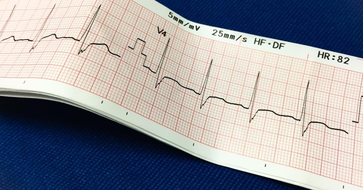 Врач перечислил три симптома, при которых нужно срочно обращаться к кардиологу