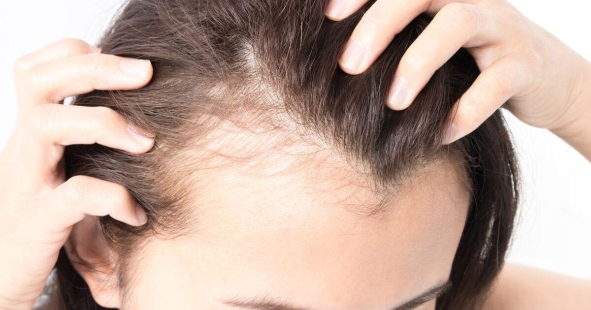 Названы пять заболеваний, которые можно определить по состоянию волос