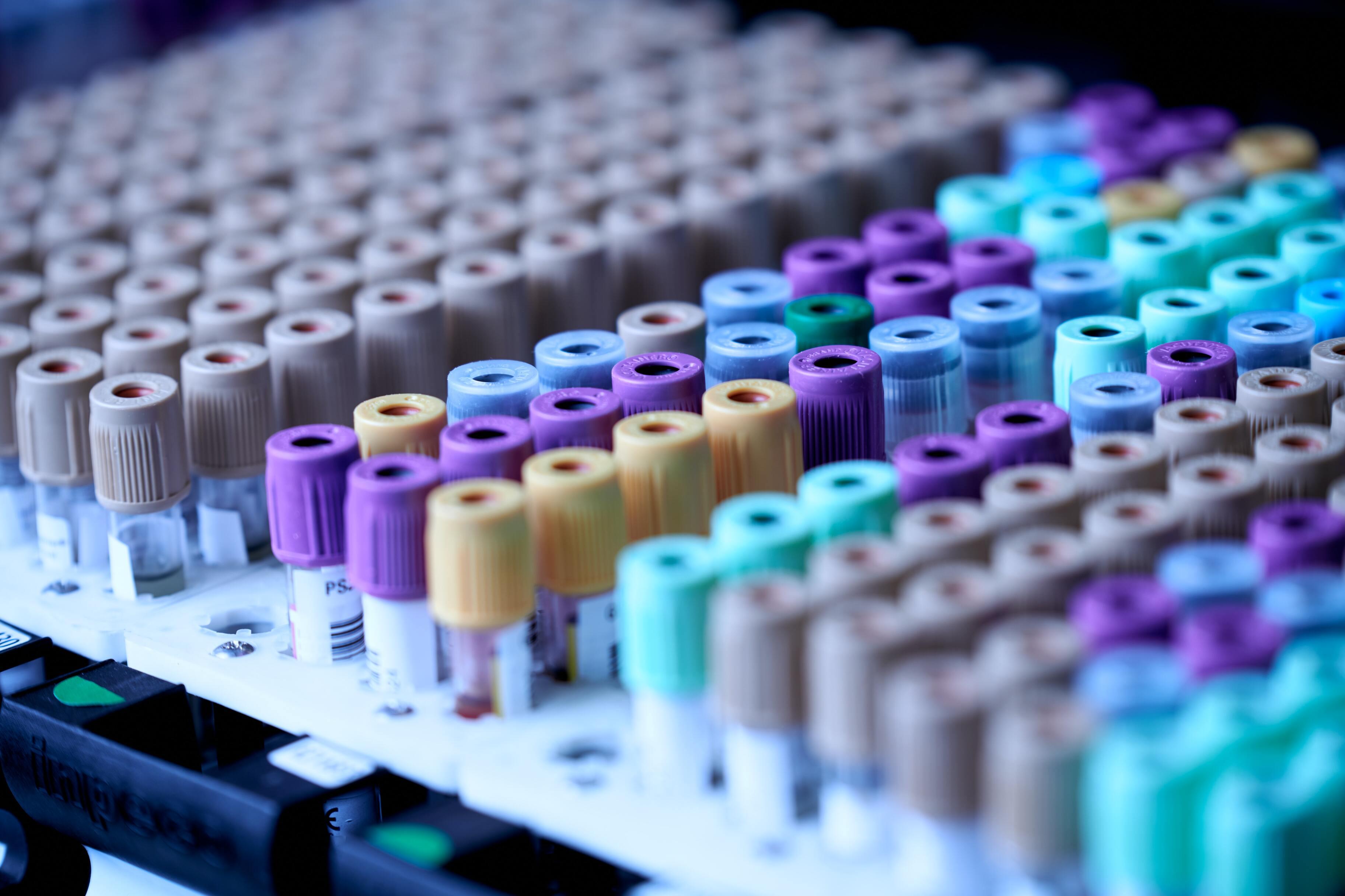 Создан выявляющий рак до появления симптомов тест
