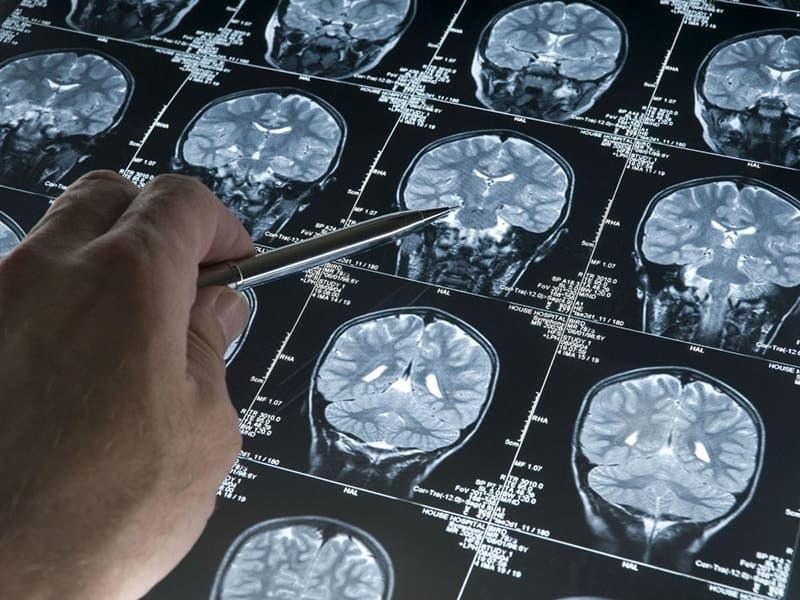 Назван продукт, который даёт иммунитет к болезни Альцгеймера